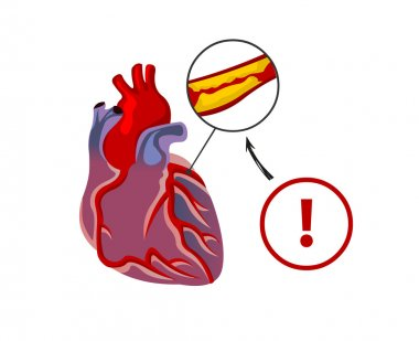 The risk of heart failure