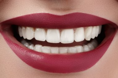 Beautiful smile with whitening teeth. Dental photo. Perfect fashion lips makeup. Health happy female smile. Macro close-up shot of woman's mouth. Care about tooth