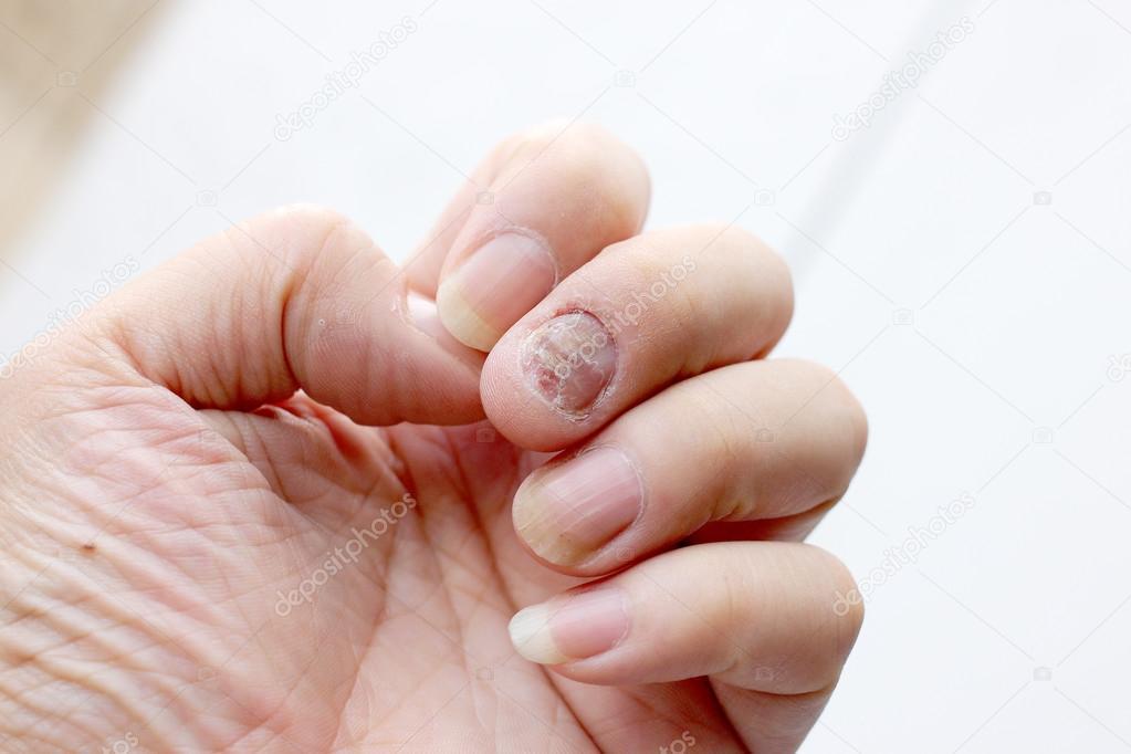 svamp på finger