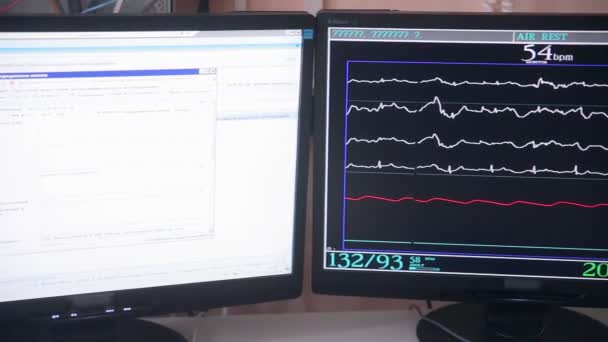Real Cardiogram. Working cardiograph in a cardiology hospital.