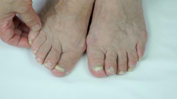 Pilzinfektion auf Nägeln von Personen Fuß
