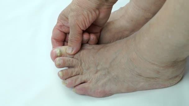 Pilzinfektion auf Fußnägeln