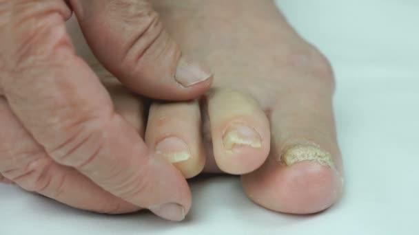 Pilzinfektion der Nägel alter Grannys Füße
