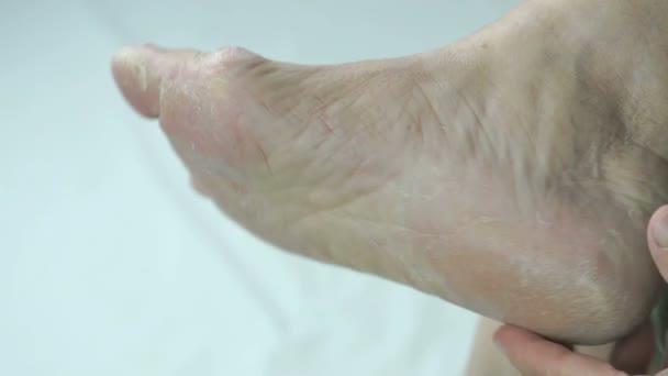 Pilzinfektion an Fußnägeln von Weibchen