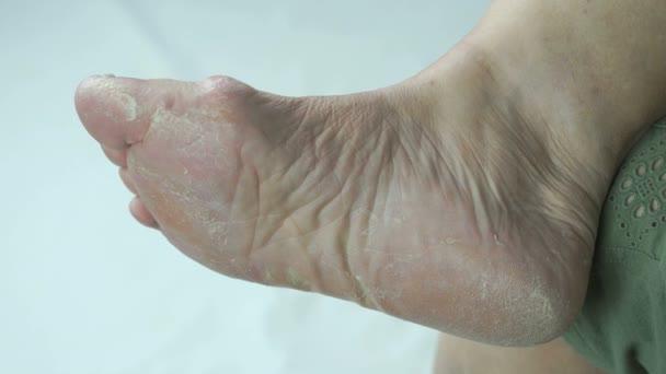 Frauenfüße haben Pilzinfektionen der Fußnägel
