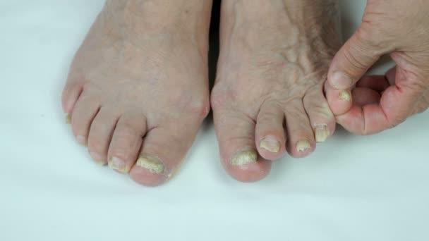 Pilzinfektion auf Nägeln des Fußes