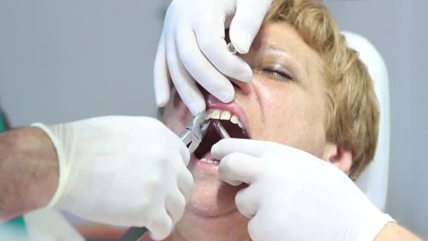 Dentist - Patients open mouth during oral checkup