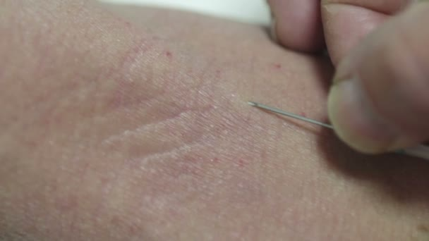 nurse putting needle in the arm