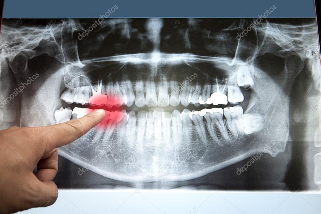 Película de radiografía dental panorámica para dentista — Foto de ...