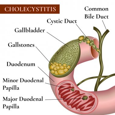 Inflammation of the gallbladder and bile ducts. Gallstones. Calculous cholecystitis.
