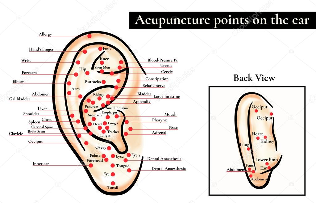 akupunktúrás fül karcsúsítów