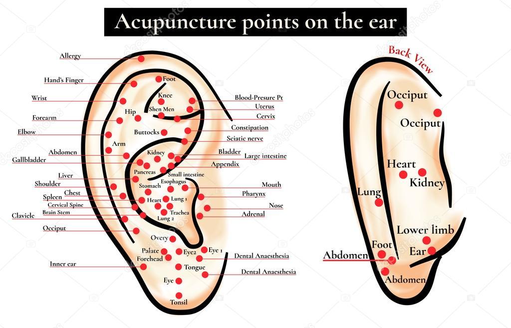 akupunktúrás hyperopia)