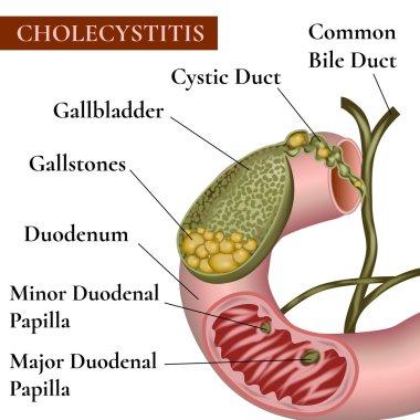 Cholecystitis. Cholelithiasis. Gallstones.