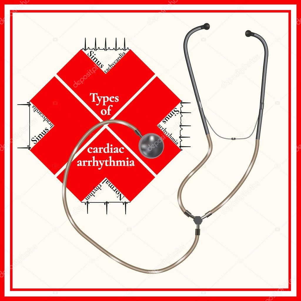Виды нарушения сердечного ритма: синусовая тахикардия, синусовая ...