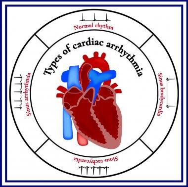 Heart structure. Types of cardiac arrhythmia.