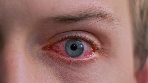 Detailní záběr otráveného záškuby červených krvavě modrých očí samce postiženého zánětem spojivek nebo po chřipce, nachlazení nebo alergii. Pojetí zdraví, nemoci a léčby. Dráždivé oko plné kapilární sítě