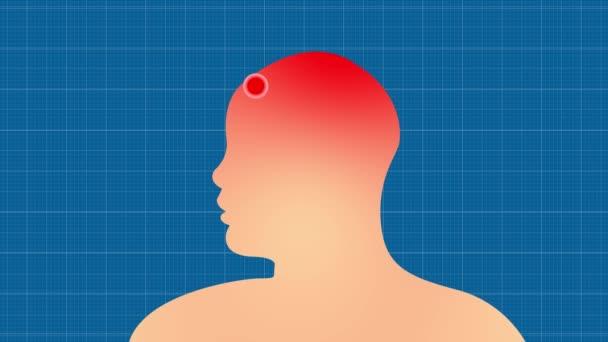 Migränekopfschmerz. Schmerzort auf einer menschlichen Silhouette. Schmerzendes Leid