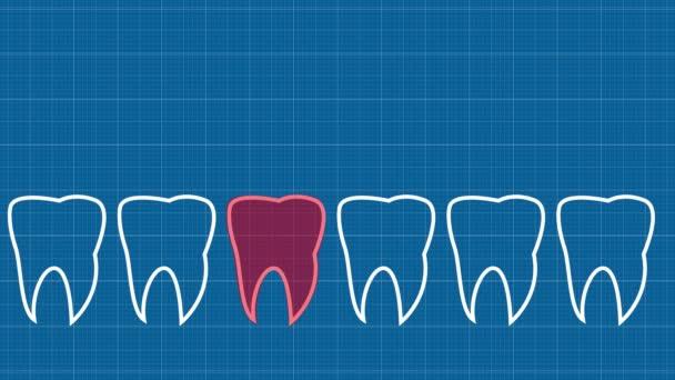 Řada zubů se špatným zubem. Bolí mě zub. animace. Stopovací papír s panoramatickou čelistí