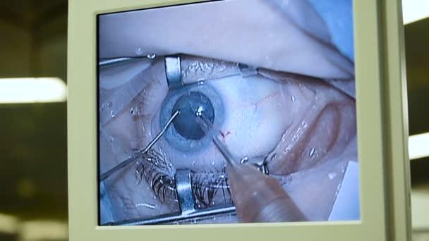 Makro snímek očima na obrazovkách během operace očí s použitím lékařské nástroje. Oftalmologie