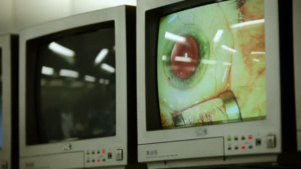 View of Two Dispays With Macro Image of Eyes During Eye Surgery. Ophthalmology