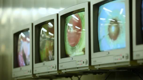 Makro snímek očima na obrazovkách během operace očí. Oftalmologie