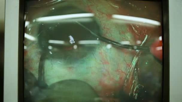 Makro snímek očima na obrazovkách během operace očí. Oftalmologie. Closeup