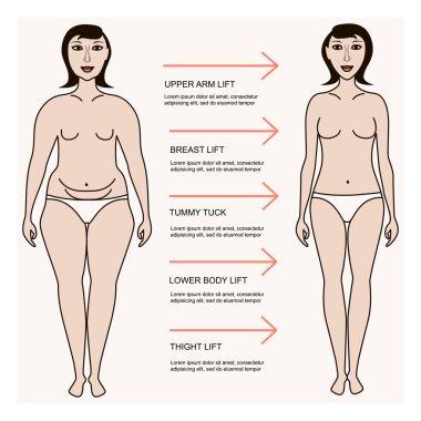 Body correction concept