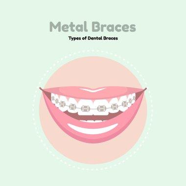 Metal Dental Braces.
