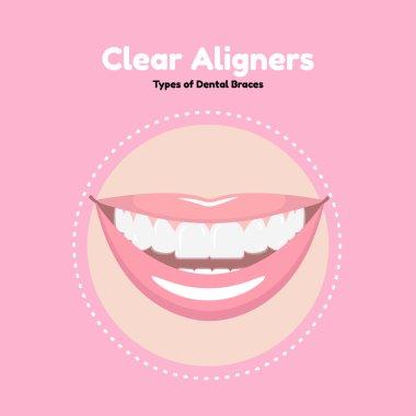 Clear Dental Alighers.
