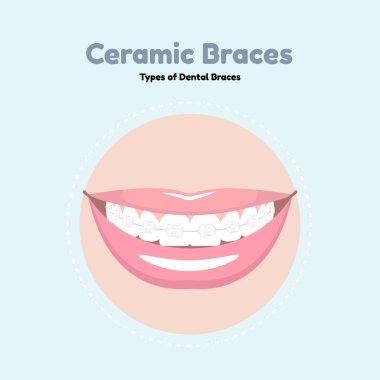 Ceramic Dental Braces.