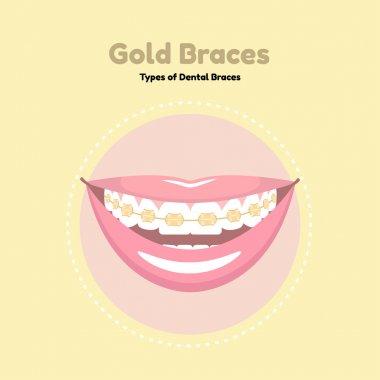 Gold Dental Braces.