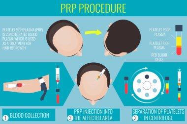 Platelet rich plasma procedure for a man