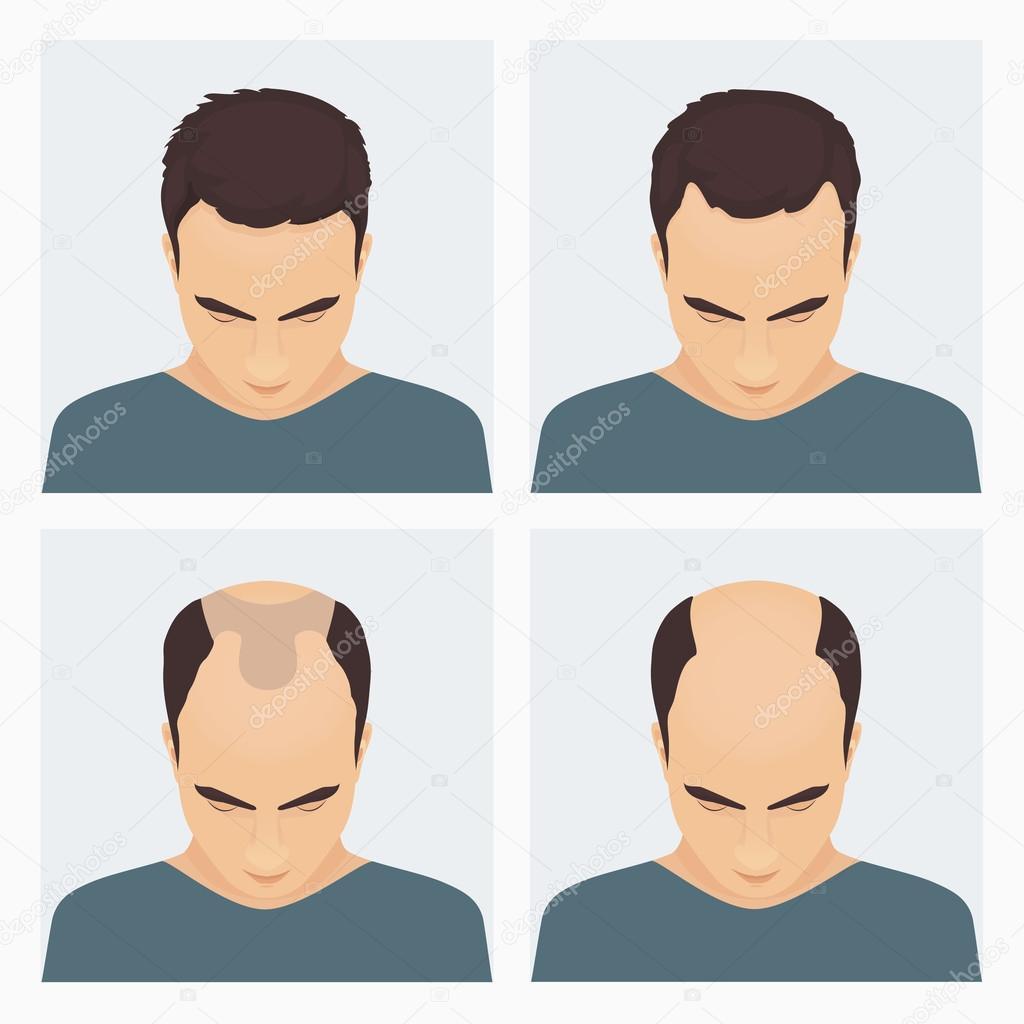 Haare wachstum mann