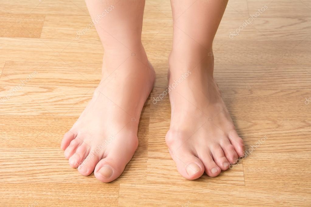 Hallux valgus, Ballenzeh im Fuß, Schmerzen in den Beinen — Stockfoto ...