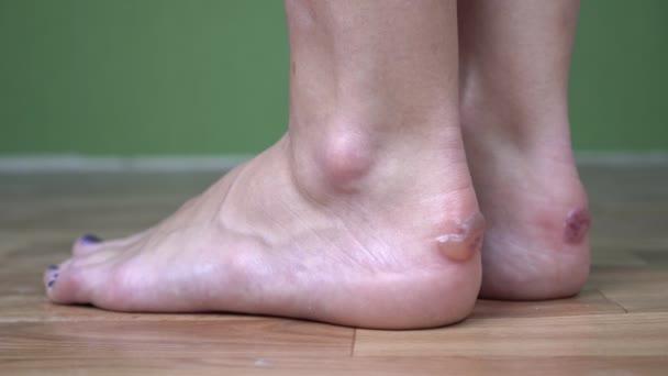 Kuličky nebo puchýře na ženských nožkách z nepohodlných bot