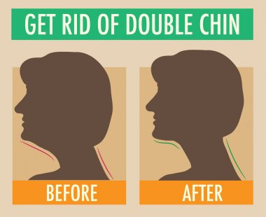 Reduce double chin. Get rid of face and neck fat concept.