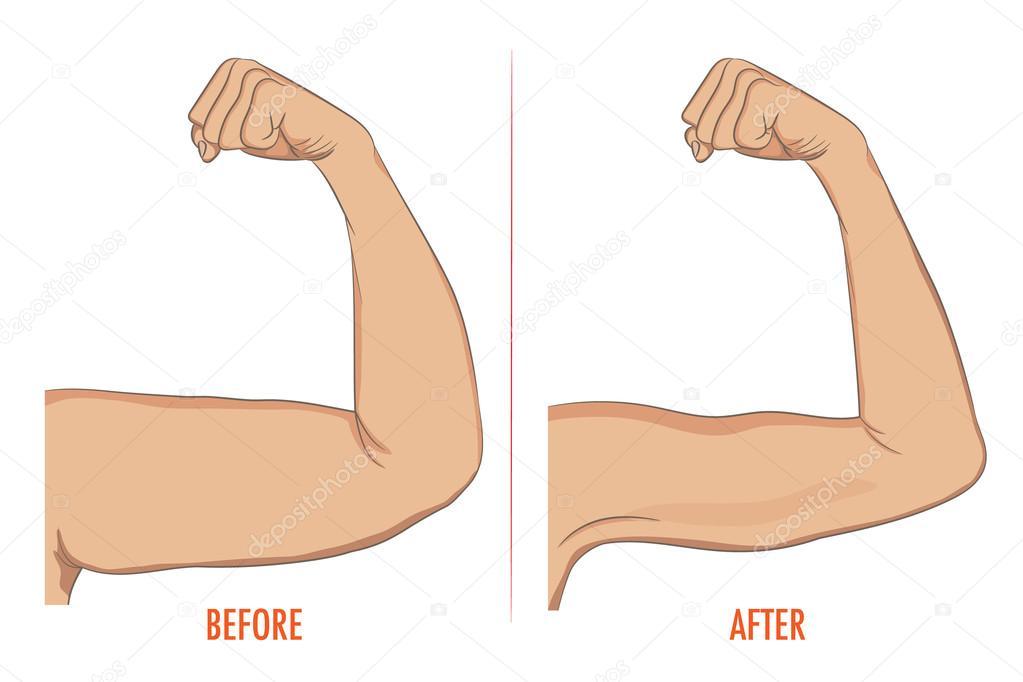 Mujer bíceps antes y después del deporte. Brazos mostrando progreso ...