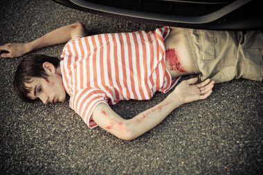 Dead child hurt in a car accident