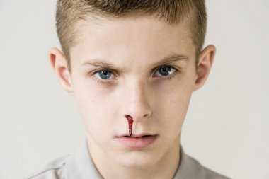 Blood trickles from nose of male child on grey