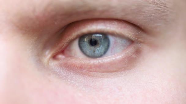 oko zblízka, šedomodrá barva, zanícené kapiláry.