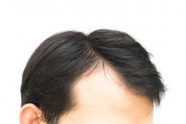 Closeup young man serious hair loss problem for hair loss concep