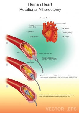 Atherectomy, Heart health, Vector design, Illustration.