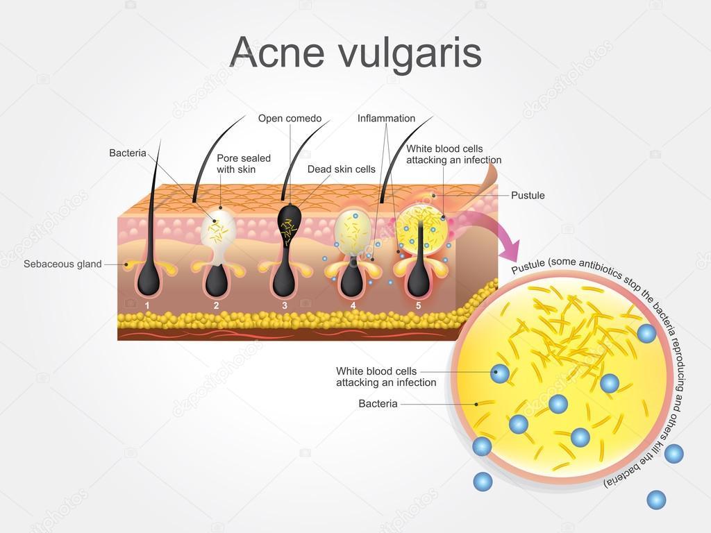 Acne Vulgaris. Vector arts, Illustration. — Stock Vector ...