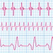 Seamless pattern of the ekg cardiograms chart...