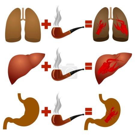 Illustration pour Image abstraite des maladies découlant de l'usage du tabac. Illustration sur fond blanc. - image libre de droit