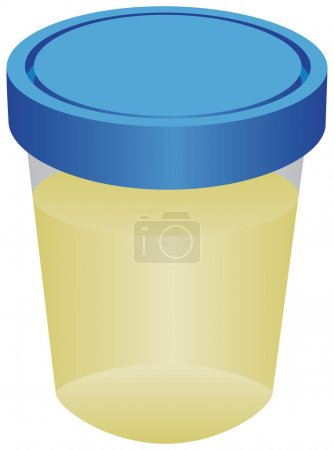 Container with urine for analysis