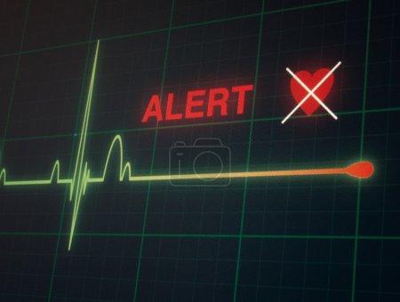 Flat line alert on a heart monitor....