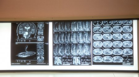 X-ray scans