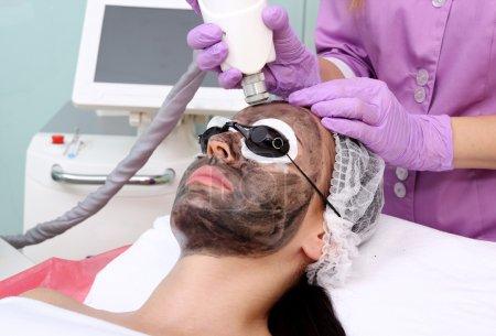 Photo pour Procédure d'épluchage de carbone. Rajeunissement au laser et éclaircissement de la peau, traitement de la peau problématique . - image libre de droit