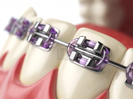 Teeth with braces or brackets in open human mouth....